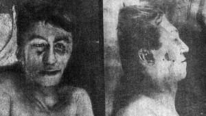 Труп Леньки Пантелеева, представленный на всеобщее обозрение в морге Обуховской больницы.