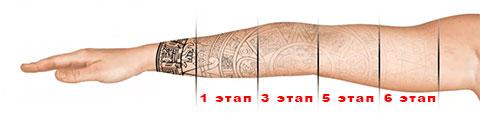 6 этапов удаления татуировки с помощью лазера