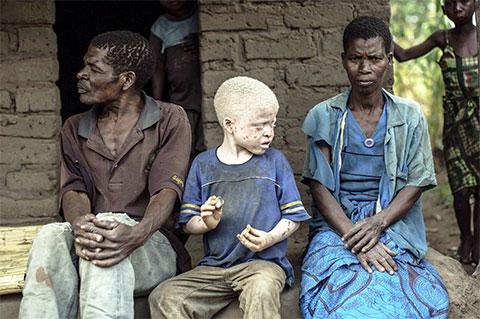 Рождение ребенка альбиноса - кошмар для негритянской семьи
