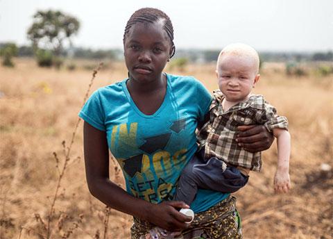 Африканский альбинос