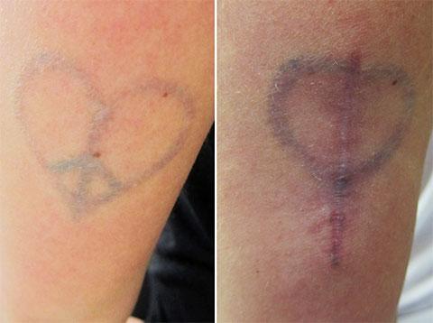 Последствия хирургического удаления татуировки