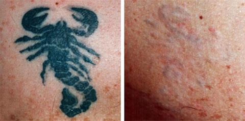 Коагуляционный метод удаления татуировки