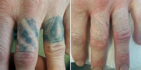 Удаление тату - до и после