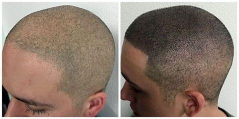 Татуировка волос на голове