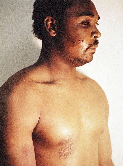 Родни Кинг после избиения полицейскими