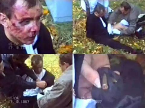 Раненый главарь банды Тит. Ему оказывают первую помощь. Затем досматривают и изымают патроны