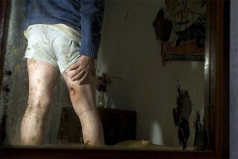 46-летний Халил был ранен в ногу из АК во время ссоры. После трех хирургических операций ногу удалось сохранить. Его семья собиралась объявить вендетту, но благодаря посреднику удалось решить дело миром
