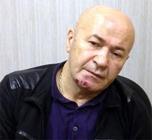 Вор в законе Реваз Бухникашвили - Пецо после задержания