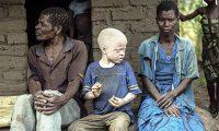 Альбиносы на заклание